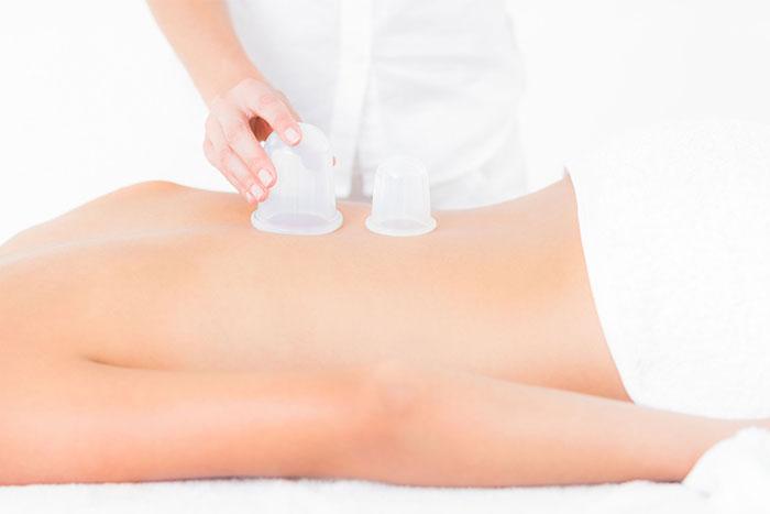 Myofascial Cupping Massage